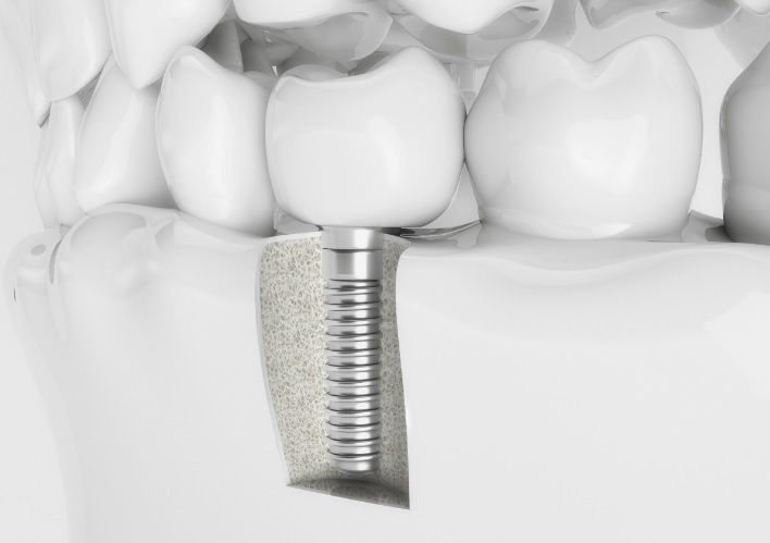 Cheap Dental Implants in Sydney