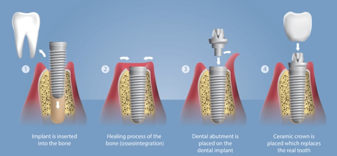 What To Expect With A Dental Implant Procedure