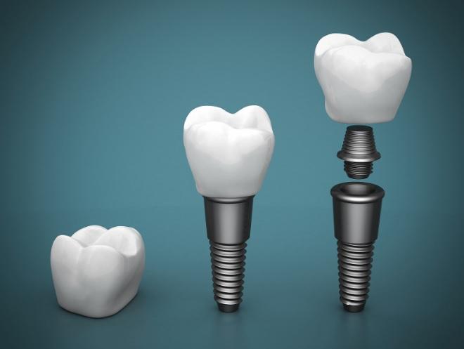 Dental Implant in Sydney