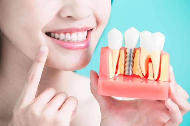 Things to Avoid After a Dental Implant Surgery