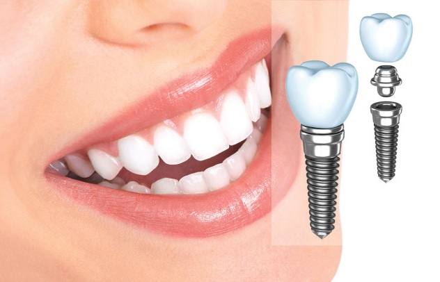 Is Dental Implant Procedure Worth Your Time and Money?