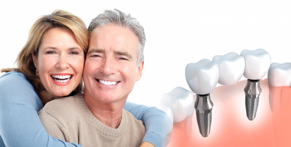 How To Save Money On Dental Implants