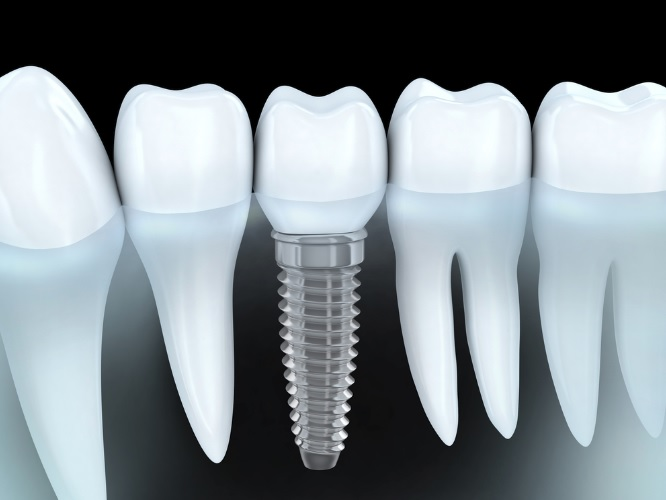 Tooth Replacement in Sydney