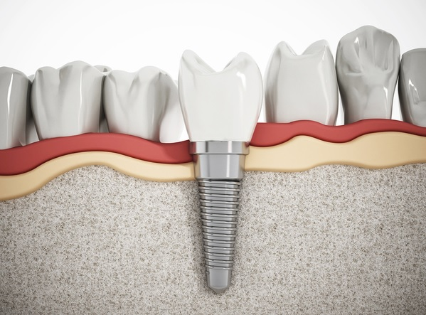 Tooth Implant in Sydney