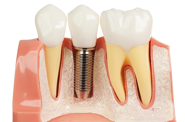 Sydney dental implant