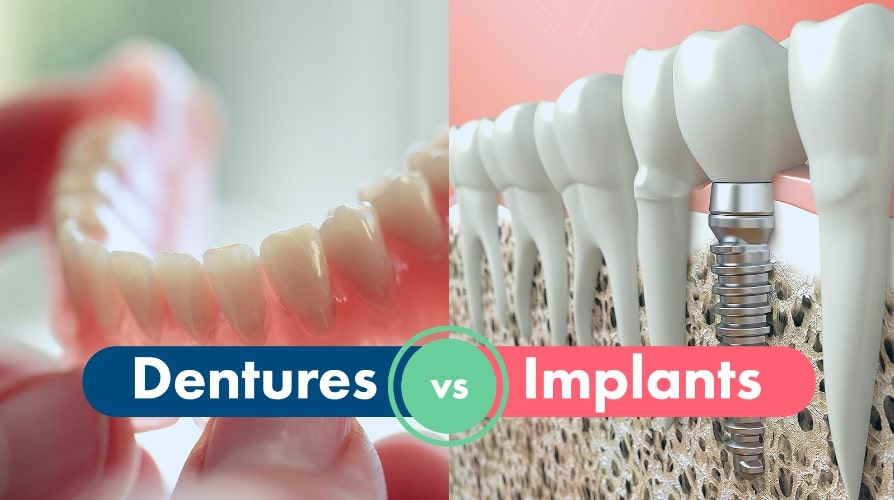 Dental Implants or Dentures: What's the Difference?