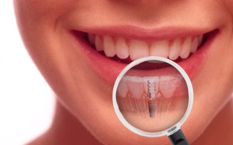 Implant in Sydney